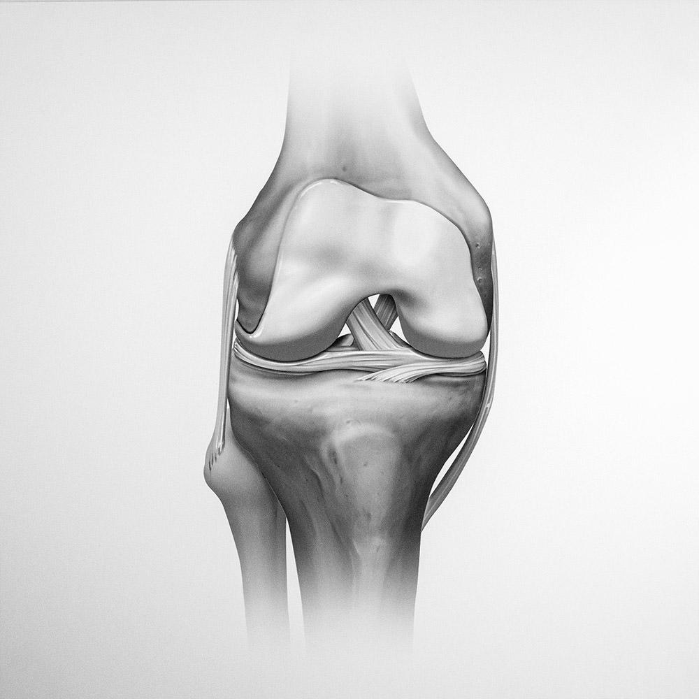 Kniechirurgie in der Sportorthopädie