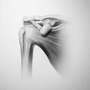 Sportortho-Schulterchirurgie